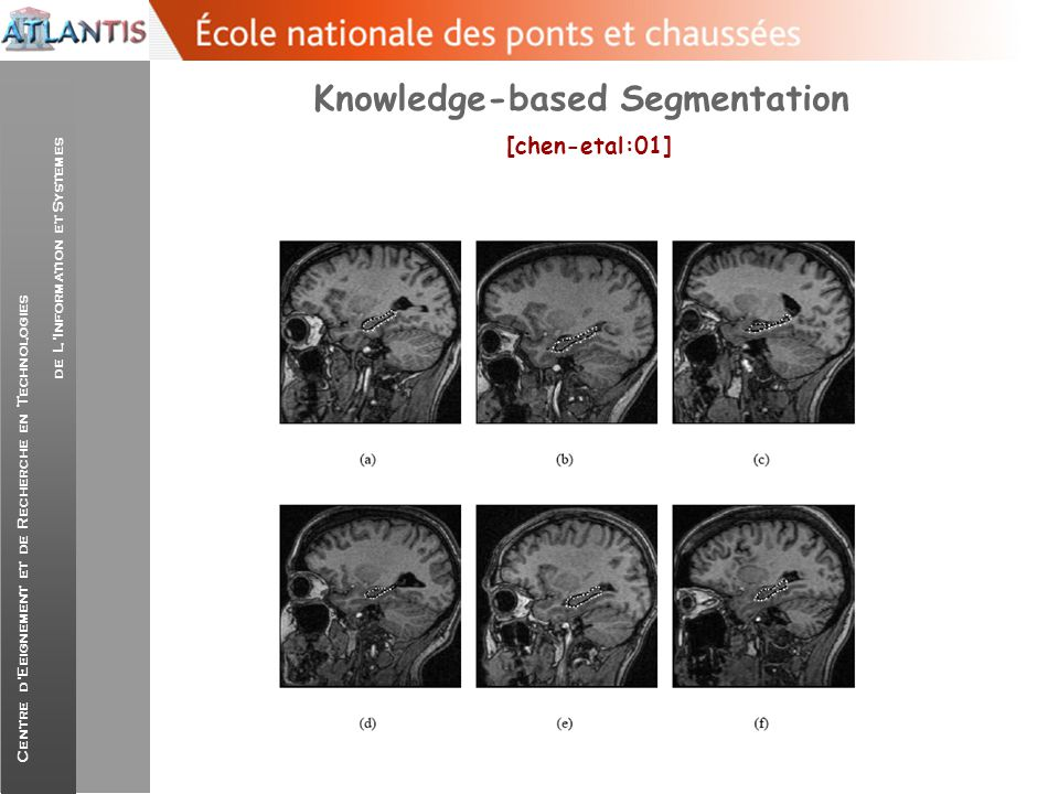 Knowledge-based Segmentation [chen-etal:01]